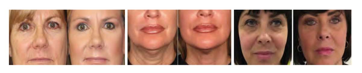 3D HIFU Beauty Machine treatments