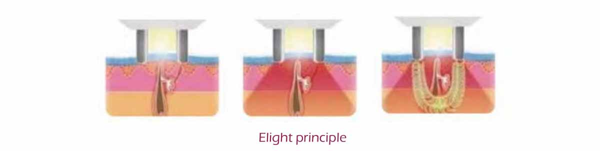 Elight principle