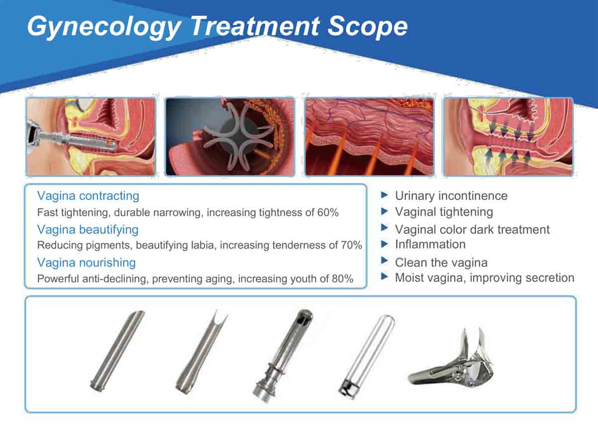 Gynecology Treatment Scope