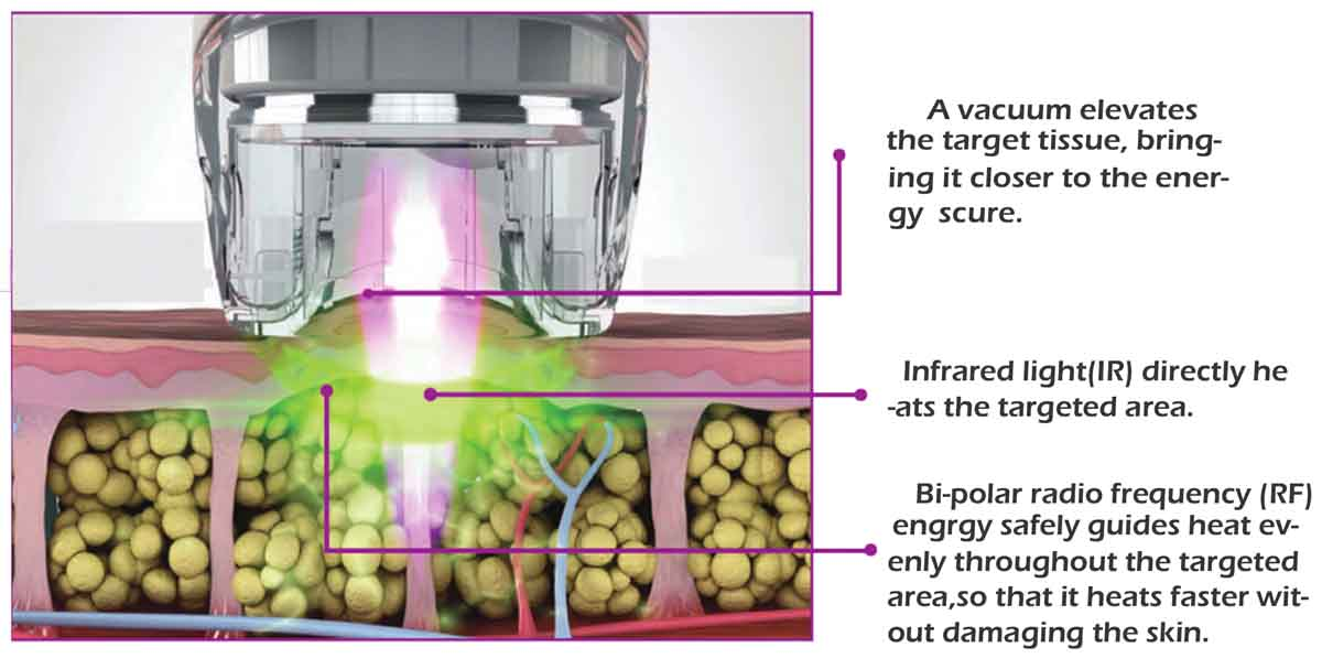 Infrared FR Vacuum Cavitation Roller Slimming Machine Treatment Principle