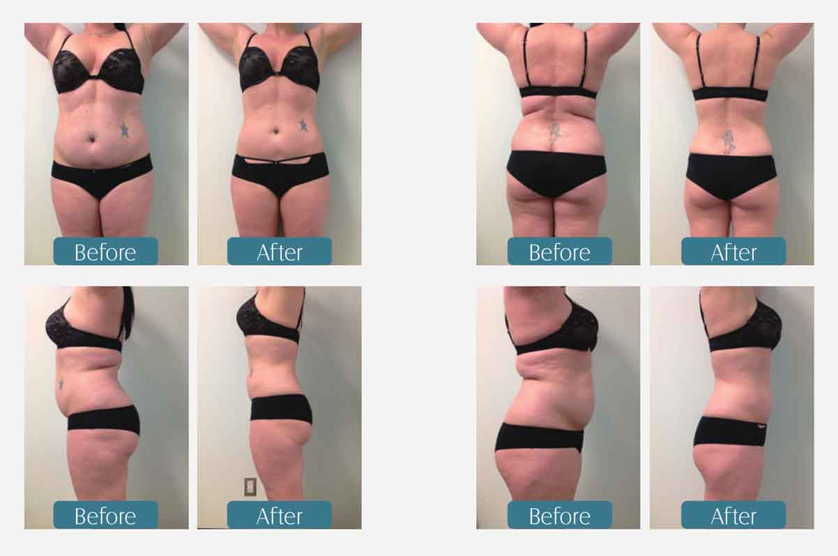 LB-C4B 4 Handles Cryolipolysis Slimming Machine before and after