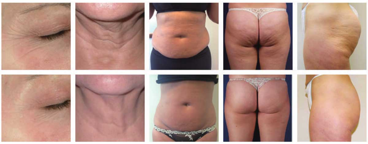 LB-U4 Cavitation RF Vacuum Slimming Machine before and after