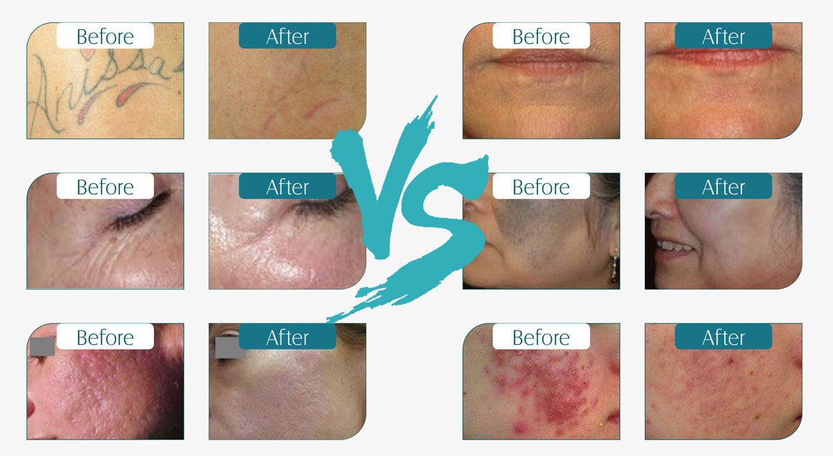 Q-switch-Nd-Yag-Laser-Skin-Care-Machine-before-and-after