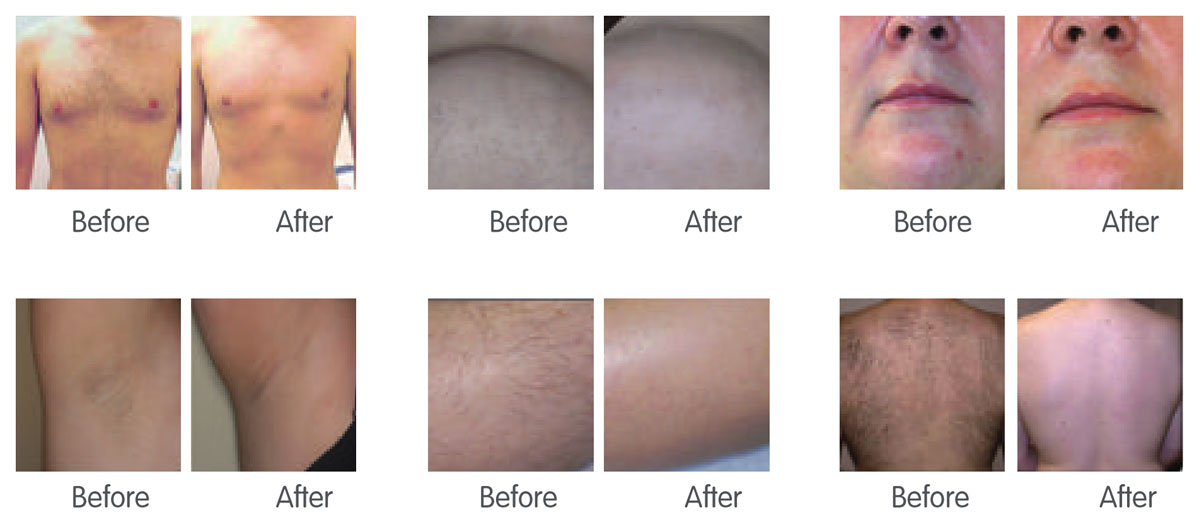 Triple-Wave-Diode-Laser-Hair-Removal-Machine-BEFORE-&-AFTER